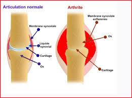 rhumatismes inflammatoires