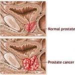 Quelle alimentation pour prévenir le cancer de la prostate ?