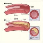 Comment faire baisser le taux de cholestérol et de triglycérides dans le sang?
