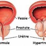 Comment éviter et soigner naturellement l'adénome de la prostate ?